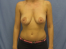 Breast Lift with Augment