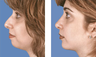 Rhinoplasty with chin implant front view