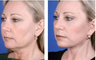 Face and neck lift with blepharoplasty, age 45
