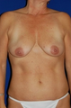 Mastopexy lift, Augmentation