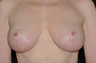 Breast Reduction Mammoplasty