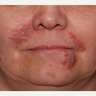 55-64 year old woman treated with Scar Removal