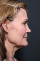 45-54 year old woman treated with Facelift
