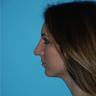 25-34 year old woman treated with Closed Rhinoplasty