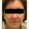45-54 year old woman treated with Radiesse