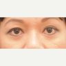 46 year old woman treated with Eyelid Surgery
