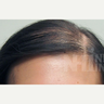 18-24 year old woman treated with Scalp Micropigmentation