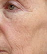 55-64 year old woman treated with ProFractional Laser