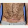 45-54 year old man treated with Scar Removal