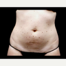 25-34 year old woman treated with truSculpt