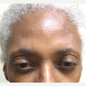 55-64 year old woman treated with Botox