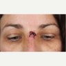 45-54 year old woman treated with Scar Removal