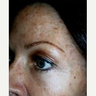 35-44 year old woman treated with Photodynamic Therapy