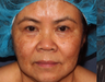Dark spots on face treated with Fraxel Laser
