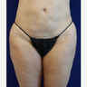50 year old woman treated with Liposuction Revision