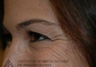 Botox to Periorbital Wrinkles (Crows' Feet)