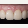 Porcelain veneers for old and discolored teeth