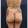 25-34 year old woman treated with 712cc Implants and 500cc of Fat Transfer for her Butt Augmentation