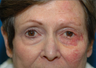 Mohs repair after excision of left lower eyelid skin cancer