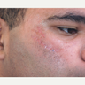 18-24 year old man treated with Scars Treatment