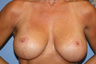 35-44 year old woman treated for Breast Lift with Implants