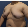 18-24 year old man treated with Male Breast Reduction