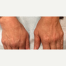 45-54 year old woman treated with Yag Laser for Sun Spots on her Hands