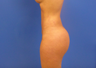 37 y.o. female  Liposuction of abdomen, flanks, and back with fat transfer to buttocks   1250cc pe