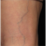 35-44 year old woman treated with Vein Treatment
