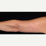 59 year old woman treated with Arm Lift