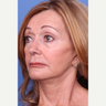 65-74 year old woman treated with Facelift