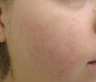 18-24 year old woman treated with Photodynamic Therapy for Acne