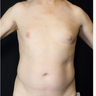45-54 year old man treated with SculpSure