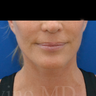 50 year old woman treated with Facelift and Necklift