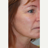55-64 year old woman treated with Liquid Facelift
