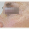 55-64 year old woman treated with Fractora RF for correction of static crow's feet wrinkles