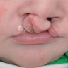 4 Month Old Infant Male Treated with Bilateral Cleft Lip Repair