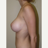 Woman treated with Breast Lift with Implants