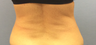 45-54 year old woman treated with SculpSure