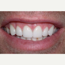 Gum surgery and six porcelain veneers.