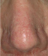 65-74 year old man treated with V-Beam laser for nasal veins