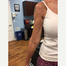65-74 year old woman treated with PDO Thread Lift in the Arms