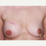 Woman treated with Breast Reconstruction