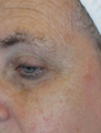 45-54 year old woman treated with Fraxel Laser