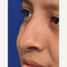 17 or under year old woman with cleft lip and palate