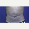 25-34 year old man treated with Tumescent Liposuction