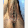 45 year old woman treated with Vaginoplasty