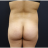 18-24 year old woman treated with 548cc Implants and 400cc of Fat Transfer for her Butt Augmentation