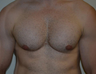Male Treated for Lack of Chest Definition