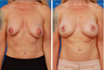 Breast Lift + Implants & Nipple/Breast Asymmetry Correction